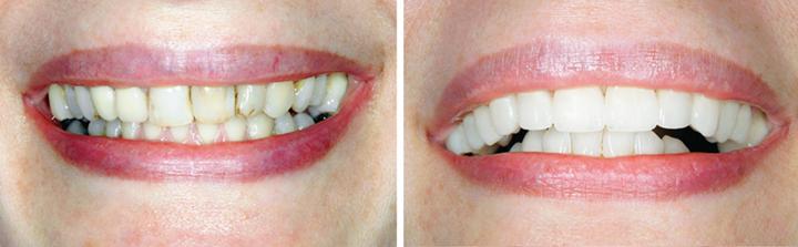 carillas dentales cerámica