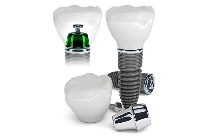 implantologia_1