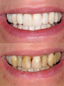 Facetes dentals